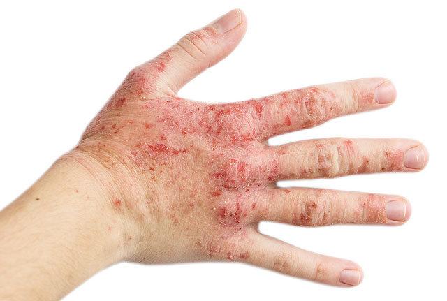 a kezén vörös folt nő