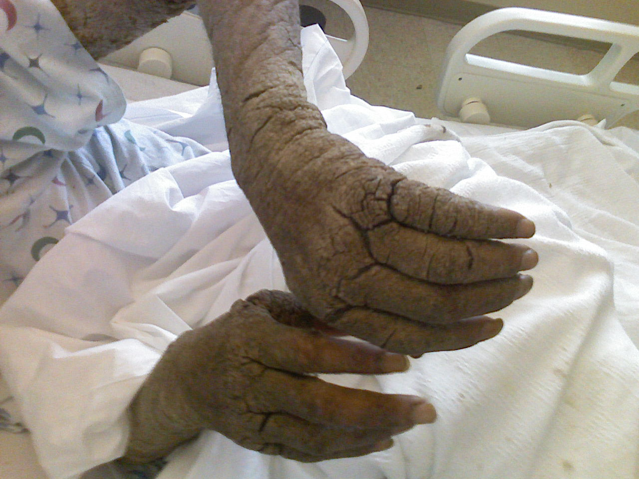 hogyan lehet piros foltokat kenni a kezeden