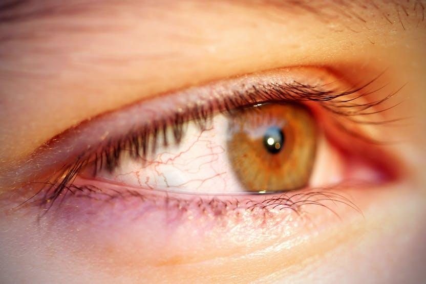 hogyan kell kezelni a szem vörös foltját)