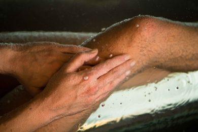 vörös foltok jelennek meg a bőrön, és lehámlanak a lábakon milyen népi gyógymódokkal gyógyítható meg a pikkelysömör