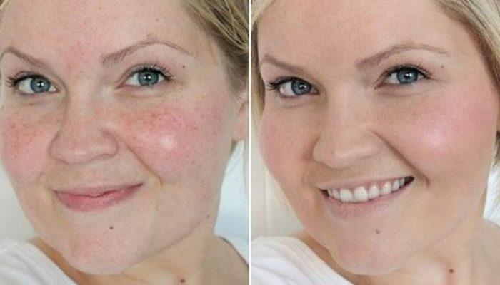 az arc tisztítása után vörös foltok voltak, mi ez