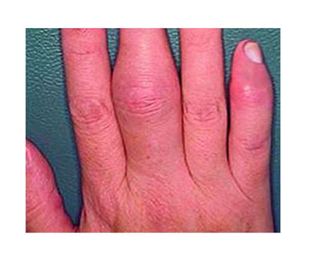 pikkelysömör és ízületi gyulladás kezelése