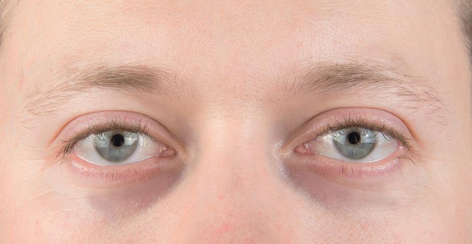 vörös foltok a szem közelében lévő bőrön pikkelysömör kezelés hasonló