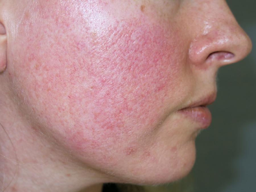 stressz után vörös foltok jelentek meg az arcon)