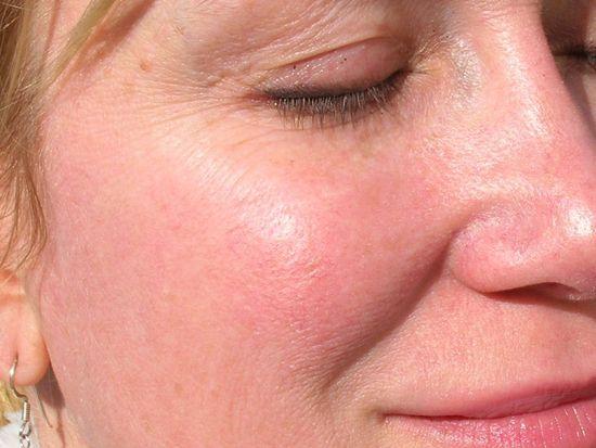 hogyan lehet megszabadulni az arc vörös pelyhes foltjaitól)