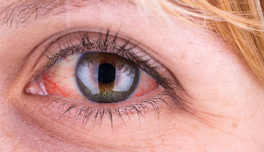 vörös folt a szem alatt hámlik mi ez)