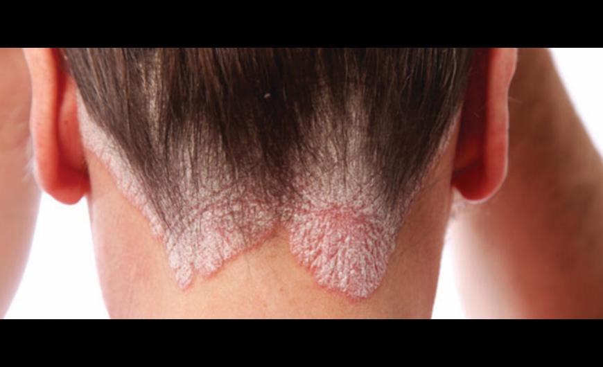 Maclura pikkelysömör kezelésében