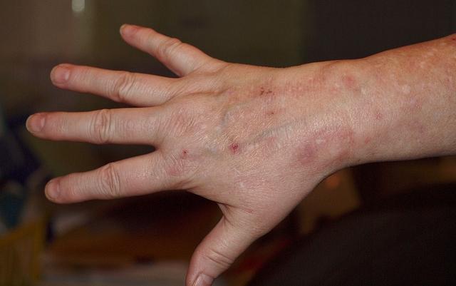 vörös foltok a kézen pikkelyes viszketnek