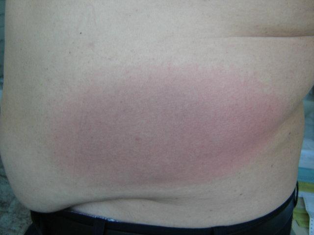 van egy piros folt a gyomorban, és fáj)