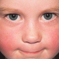 az arcán egy vörös durva folt hogyan kell kezelni)