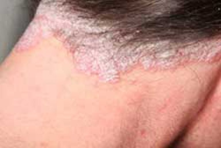 pikkelysömör kezelése hemodezzel)