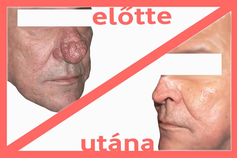 hogyan lehet eltávolítani az orr piros foltjait)