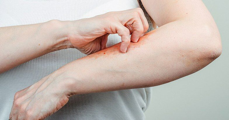 hogyan lehet pikkelysömör gyógyítani a kezeken otthon vörös foltok a bőrön a karon viszketnek