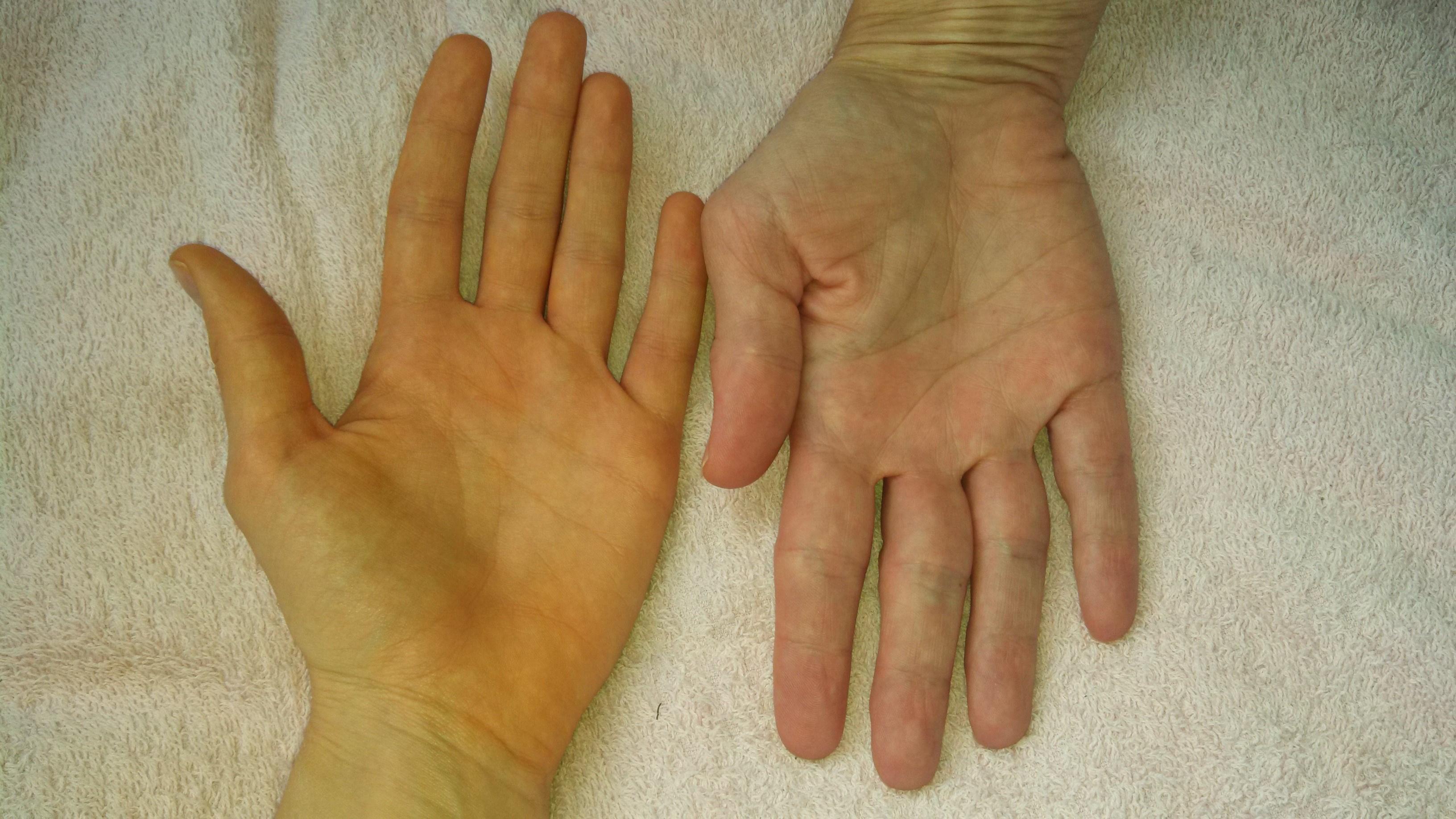 forró vörös folt jelent meg a kézen