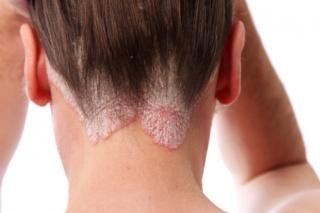 sebek vagy vörös foltok jelennek meg a fejbőrön piros foltok a kezén viszket fénykép hogyan kell kezelni