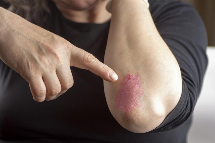 kenőcs a tenyér pikkelysömörének kezelésére vörös kéz jelent meg a kezén, mint egy zuzmó