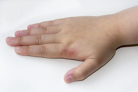 vörös foltokkal borított kezek)