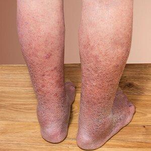 vörös folt a lábon visszér lotion for pikkelysömör tiszta test reviews
