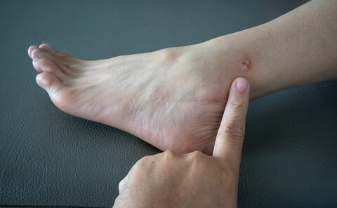 vörös gennyes foltok a lábakon