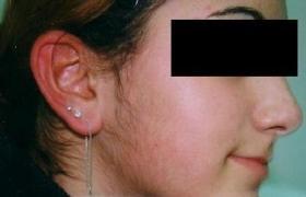 pikkelysömör kezelése botoxszal)