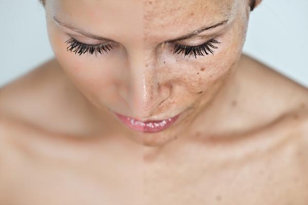 sebek vagy vörös foltok jelentek meg a fejbőr fotóján)
