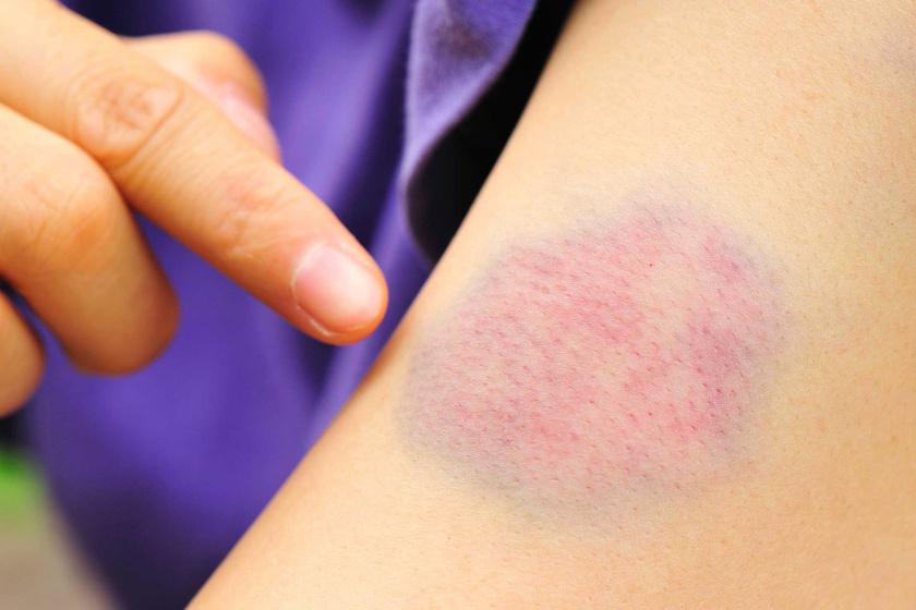 vörös foltok a comb belső oldalán a nők kezelésében hogyan kell gyógyítani a pikkelysömör sebeket