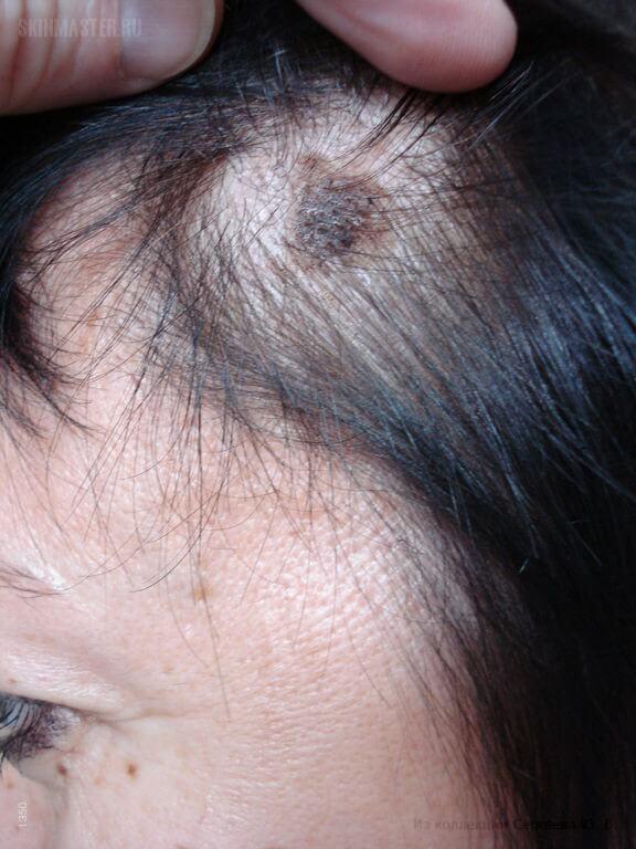 a fejbőrön vörös foltok hámozódnak mi ez