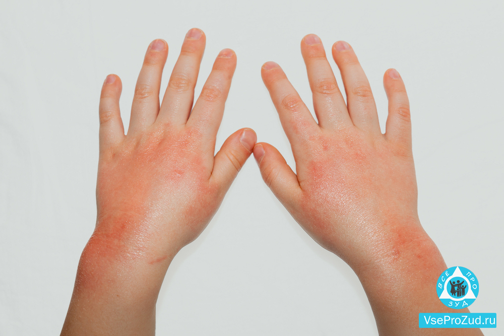 a kezén vörös domború folt hámlik