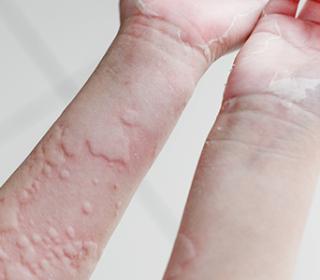 kiütések a kezeken vörös foltok formájában felnőtteknél vörös napfoltok a bőrön