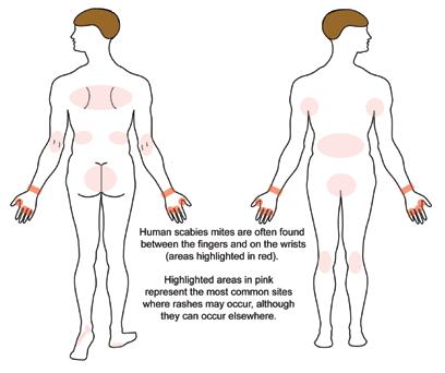bőrbetegségek élénkpiros foltok vörös száraz viszkető folt a bőrön