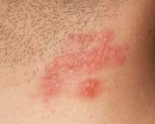 Piros foltok a testen - milyen betegségek jelennek meg?