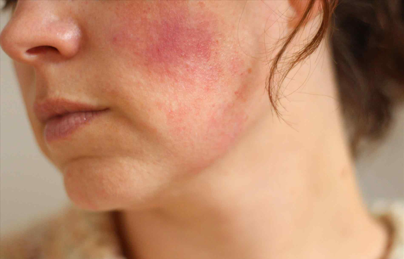 vörös foltok az arc bőrén férfiaknál)