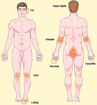 kalcium pikkelysömör kezelése)