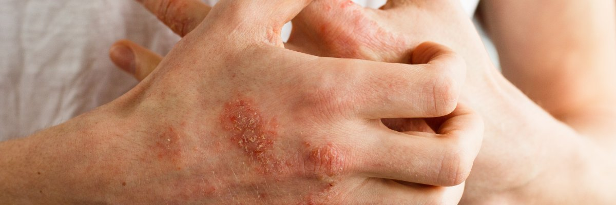 Eucerin®: A bőrről|Seborrheás dermatitisz