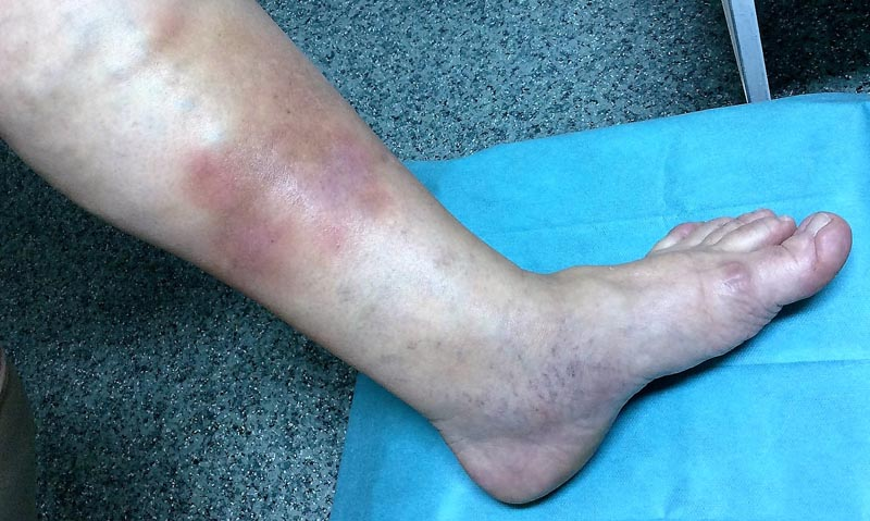 élénkpiros foltok a lábak bőrén