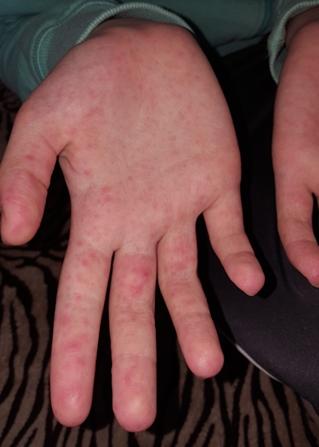 vörös foltok vannak a kezeken a kéz felett)