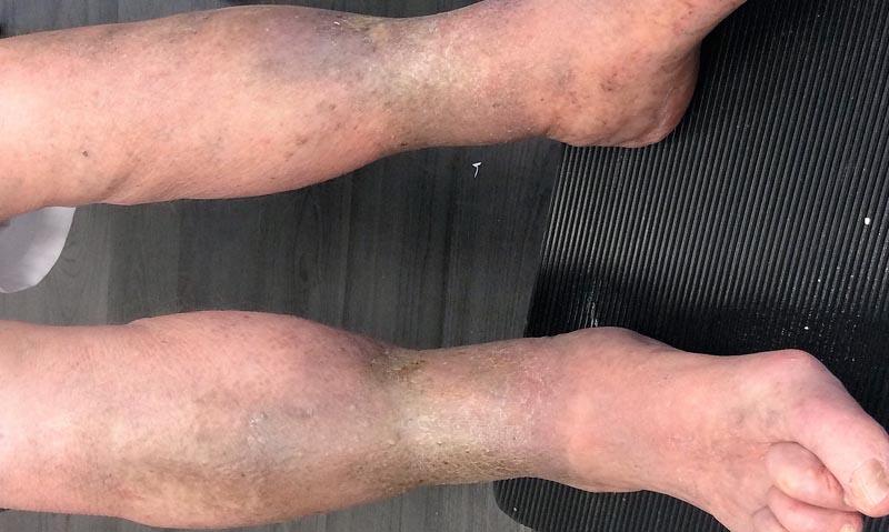 vörös folt a lábán visszérrel)