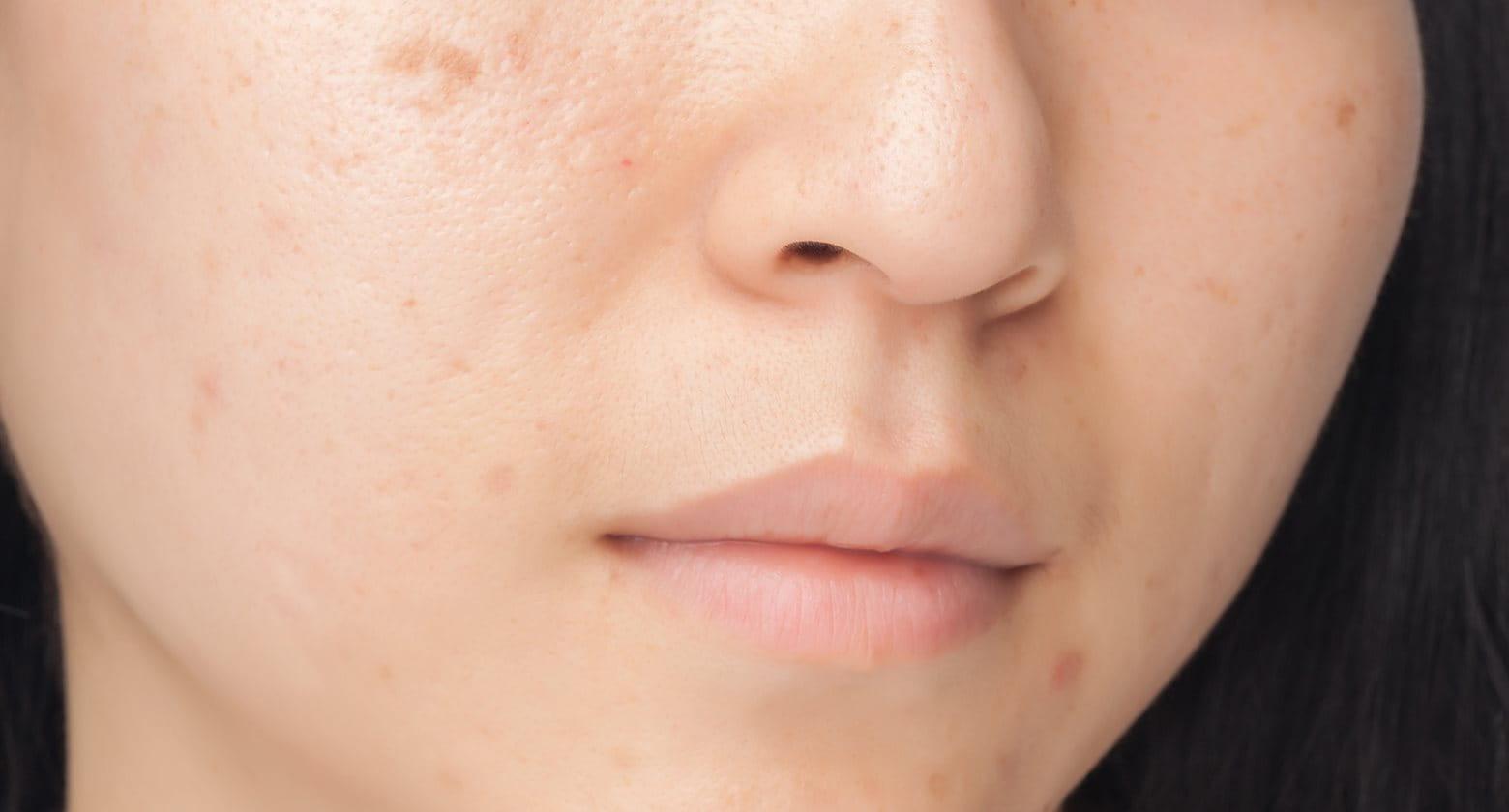 az arc tisztítása után a foltok pirosak)