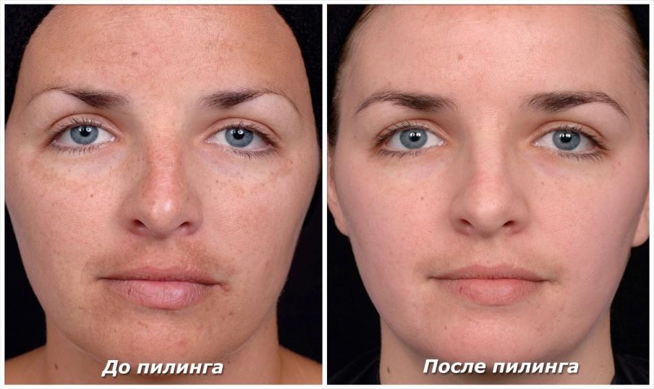Így lesz ragyogó a bőröd! Ezek a helyes arctisztítás lépései