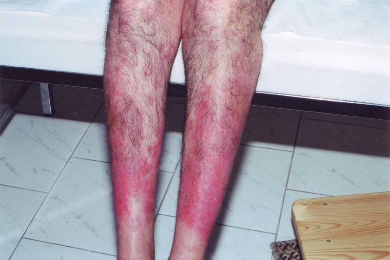 a lábán piros folt pattanásokkal