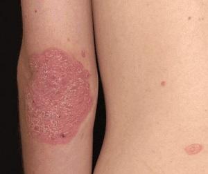 hogyan gyógyítja a lábon lévő pikkelysömör