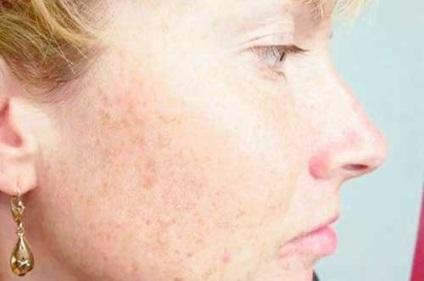 milyen vörös foltok jelennek meg az arcon