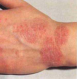 pikkelysömör kezelés immunofannal piros folt a hátán fáj és viszket