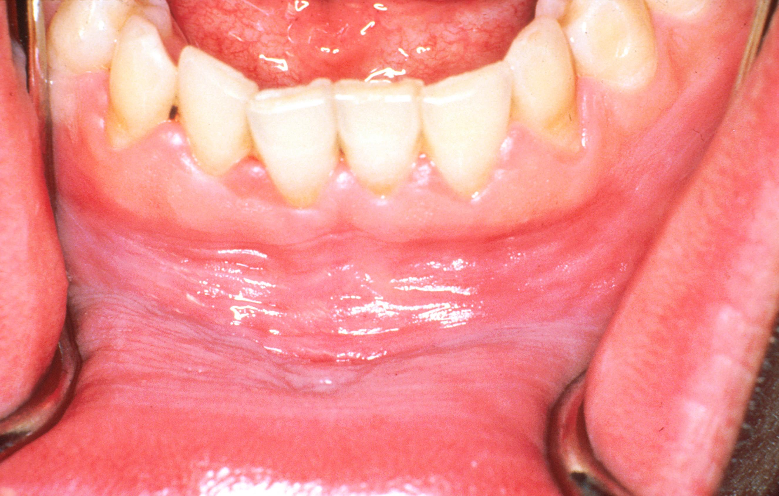 eritroderm pikkelysömör kezelése vörös pikkelyes foltok az állon és a száj körül