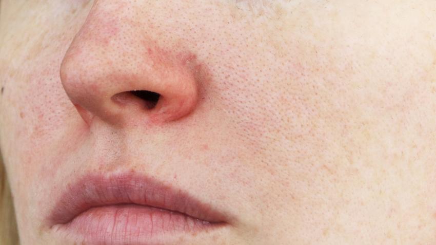 Piros foltok az orron