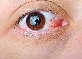 vörös szemek a szeméremrészen a nők viszketnek)