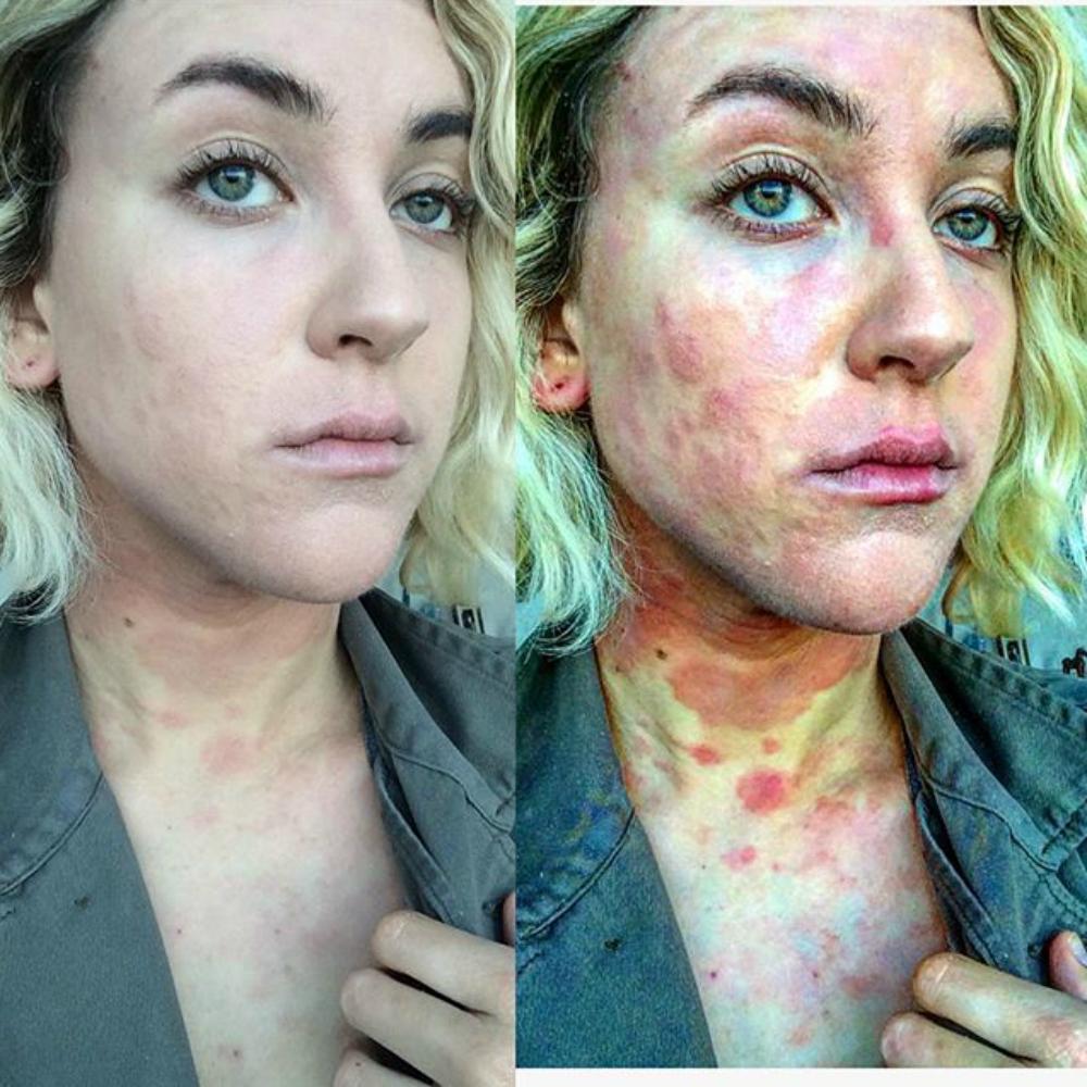 népi gyógymódok pikkelysömörre a lábakon a bőr alatt vörös folt vérrel