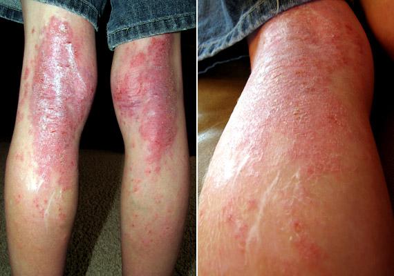 ekcma pikkelysömör dermatitis kezelse gyűjtemény pikkelysömör kezelésére
