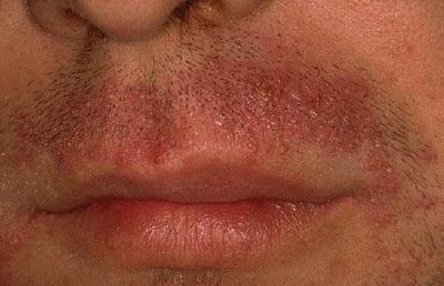 vörös foltok az arcon a szőrtelenítés után