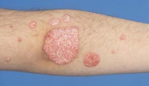 pathology mikrobiális ekcéma - Quarantine Q&A